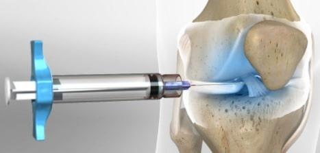 Knee Pain Management-knee pain treatment