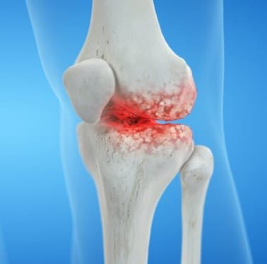 knee Arthritis-knee pain treatment